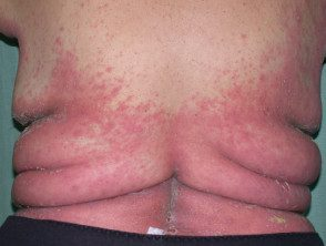 gen-pustular-psoriasis-04__protectwyjqcm90zwn0il0_focusfillwzi5ncwymjisingildfd-7283901-2081664