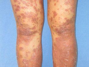 gen-pustular-psoriasis-05__protectwyjqcm90zwn0il0_focusfillwzi5ncwymjisinkildg1xq-1083069-3400183
