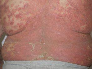 gene-pustular-psoriasis-07__protectwyjqcm90zwn0il0_focusfillwzi5ncwymjisingildfd-9611985-9629756