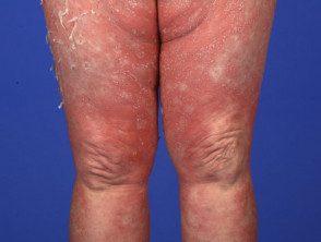 gen-pustular-psoriasis-08__protectwyjqcm90zwn0il0_focusfillwzi5ncwymjisingilde5xq-3934759-7809122