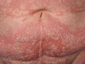 gen-pustular-psoriasis-09__protectwyjqcm90zwn0il0_focusfillwzi5ncwymjisingilde5xq-3599170-4567772