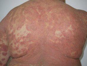 gene-pustular-psoriasis-12__protectwyjqcm90zwn0il0_focusfillwzi5ncwymjisingildfd-6690462-1775564