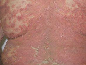 gen-pustular-psoriasis-13__protectwyjqcm90zwn0il0_focusfillwzi5ncwymjisingildfd-3872510-8720869