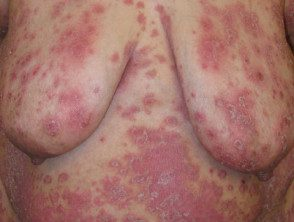 gen-pustular-psoriasis-16__protectwyjqcm90zwn0il0_focusfillwzi5ncwymjisinkildg1xq-9015616-1486330