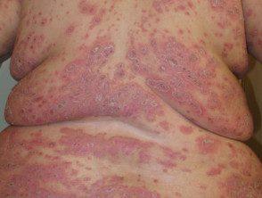 gen-pustular-psoriasis-17__protectwyjqcm90zwn0il0_focusfillwzi5ncwymjisinkildg1xq-2016117-7253401