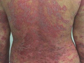 gen-pustular-psoriasis-18__protectwyjqcm90zwn0il0_focusfillwzi5ncwymjisinkildg1xq-2461487-6775101