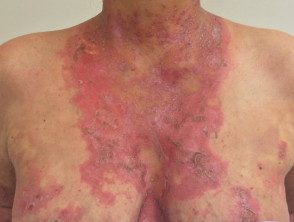 gen-pustular-psoriasis-19__protectwyjqcm90zwn0il0_focusfillwzi5ncwymjisingildfd-3404609-6550751