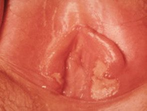 genital-herpes-3-s__protectwyjqcm90zwn0il0_focusfillwzi5ncwymjisinkildjd-4789528-8870248