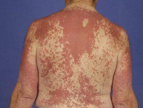 dermatite granulomateuse2__protectwyjqcm90zwn0il0_focusfillwzi5ncwymjisingildfd-7952225-9412024