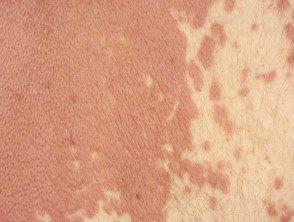 dermatite granulomateuse3__protectwyjqcm90zwn0il0_focusfillwzi5ncwymjisingildfd-4267121-1864369