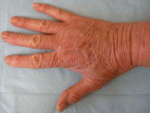 hand-dermatitis-rubber__protectwyjqcm90zwn0il0_focusfillwzi5ncwymjisingildfd-2247098-3126389