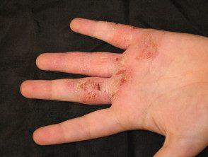 hand-dermatitis2__protectwyjqcm90zwn0il0_focusfillwzi5ncwymjisingildfd-9962186-3412680