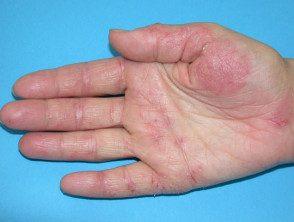 hand-dermatitis4__protectwyjqcm90zwn0il0_focusfillwzi5ncwymjisingildfd-8371646-9168358