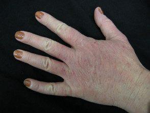 hand-dermatitis5__protectwyjqcm90zwn0il0_focusfillwzi5ncwymjisingildfd-7907215-7472161