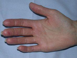 hand-dermatitis6__protectwyjqcm90zwn0il0_focusfillwzi5ncwymjisingildfd-6666639-6527645