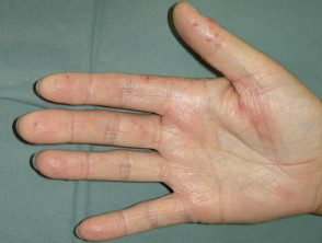 hand-dermatitis7__protectwyjqcm90zwn0il0_focusfillwzi5ncwymjisingildfd-4239647-7709514