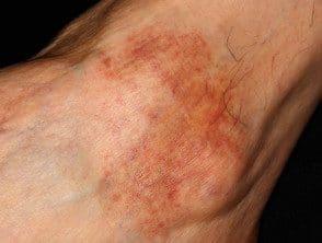 lichen-aureus-01__protectwyjqcm90zwn0il0_focusfillwzi5ncwymjisingildfd-2298869-8866842