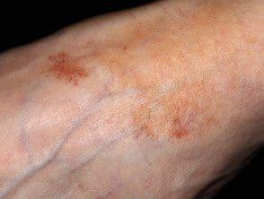 lichen-aureus-02__protectwyjqcm90zwn0il0_focusfillwzi5ncwymjisingildfd-7526753-4197908