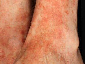 lichen-aureus-04__protectwyjqcm90zwn0il0_focusfillwzi5ncwymjisinkildg1xq-6713686-8797552