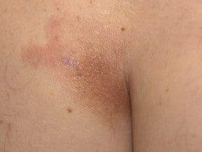 lichen-aureus-05__protectwyjqcm90zwn0il0_focusfillwzi5ncwymjisingilde5xq-8855361-9738008