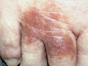 lichen-aureus33__protectwyjqcm90zwn0il0_focusfillwzi5ncwymjisinkildzd-3495686-6662751