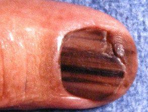 melanoma-074__protectwyjqcm90zwn0il0_focusfillwzi5ncwymjisingildfd-2034558-1632076