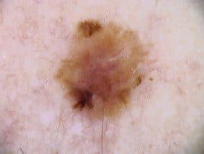melanoma-20y__protectwyjqcm90zwn0il0_focusfillwzi5ncwymjisingildfd-3404360-7924802