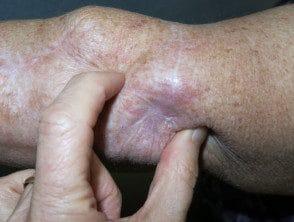 metastático-melanoma-02__protectwyjqcm90zwn0il0_focusfillwzi5ncwymjisingildfd-1113879-4801445
