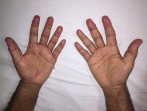 multicentric-histiocytosis-003__protectwyjqcm90zwn0il0_focusfillwzi5ncwymjisingildfd-3600341-9187313