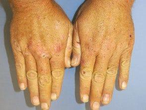 pct-hands-resize__protectwyjqcm90zwn0il0_focusfillwzi5ncwymjisingildfd-3236800-5172364