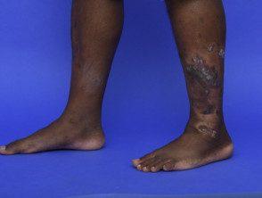 psoriasis-dark-skin__protectwyjqcm90zwn0il0_focusfillwzi5ncwymjisingilde5xq-8339266-6205744