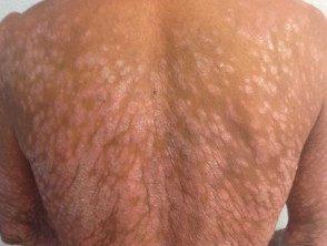 psoriasis-severe-back__protectwyjqcm90zwn0il0_focusfillwzi5ncwymjisingildfd-5342455-3748477