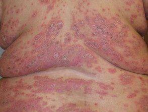 psoriasis-severe__protectwyjqcm90zwn0il0_focusfillwzi5ncwymjisingildfd-6790967-4858587