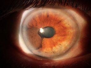 uveal-melanoma5__protectwyjqcm90zwn0il0_focusfillwzi5ncwymjisingildfd-9307148-2325263