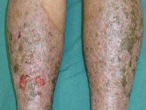 venous-disease-04__protectwyjqcm90zwn0il0_focusfillwzi5ncwymjisinkildg0xq-5913483-4662725