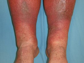venous-disease-05__protectwyjqcm90zwn0il0_focusfillwzi5ncwymjisinkildg1xq-3562758-6351441