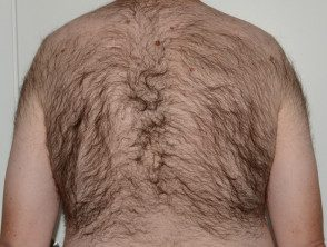 xs-hair-5__protectwyjqcm90zwn0il0_focusfillwzi5ncwymjisingildfd-5025449-9723937