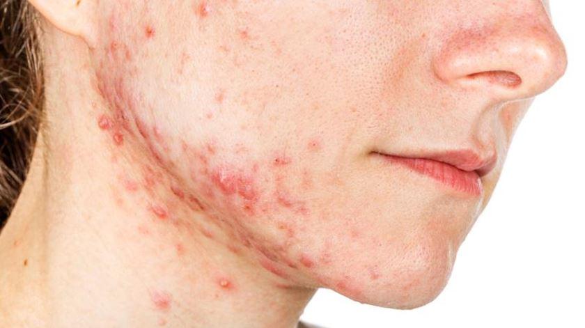 acne-vulgar-6287165-8363125-jpg-8972617